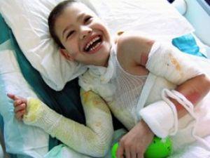 9 ameliyat ve deri nakliyle hayata tutundu