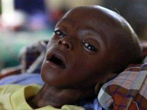 Açlığın simgesi bebekten mucize hayata dönüş!