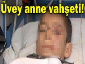 Çocuk 40 günde hayatını kaybetti