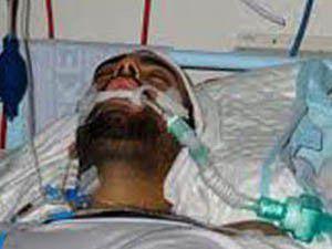 Sopalı saldırıya uğrayan Türk öldü