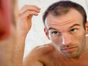 Erkeklerin derdi saç dökülmesi ve kellik