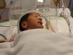 3 günlük bebeğe yemek borusu ameliyatı