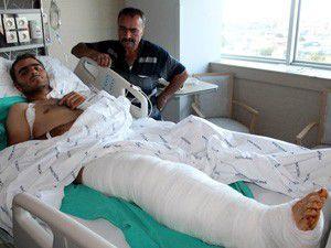 Kesilecek bacağını doku nakli kurtardı