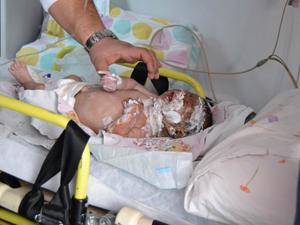 45 günlük bebek ağır yaralandı