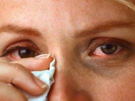Göz Alerjisinden Nasıl Korunulur?