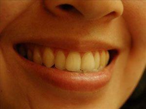 Çürük dişler kalbi etkiliyor