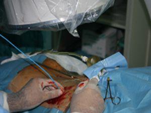 Bu ameliyat yöntemi kanamayı azaltıyor