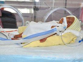 Dünya tıp literatürüne giren bebek doğdu