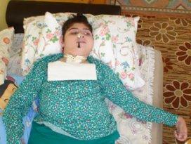 14 yaşındaki engelli Gülce burnundan besleniyor