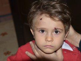 Sokak köpekleri 3 yaşındaki çocuğu yaraladı