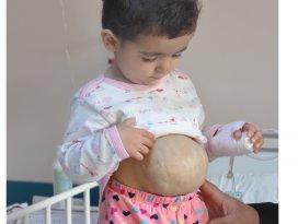 İç organları dışarıda olan Suriyeli çocuk sağlığına kavuştu