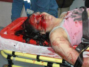 Genç kadının feci ölümü