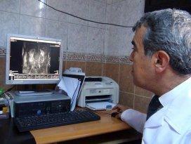 Meram Tıp Fakültesi başarılı bir operasyona daha imza attı