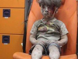 Halepte Ümran gibi 100 binden fazla çocuk var