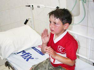 Patlayan deodorant kutusu çocukları yaraladı