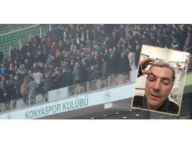 Trabzon maçında kaşı açılan yönetici konuştu
